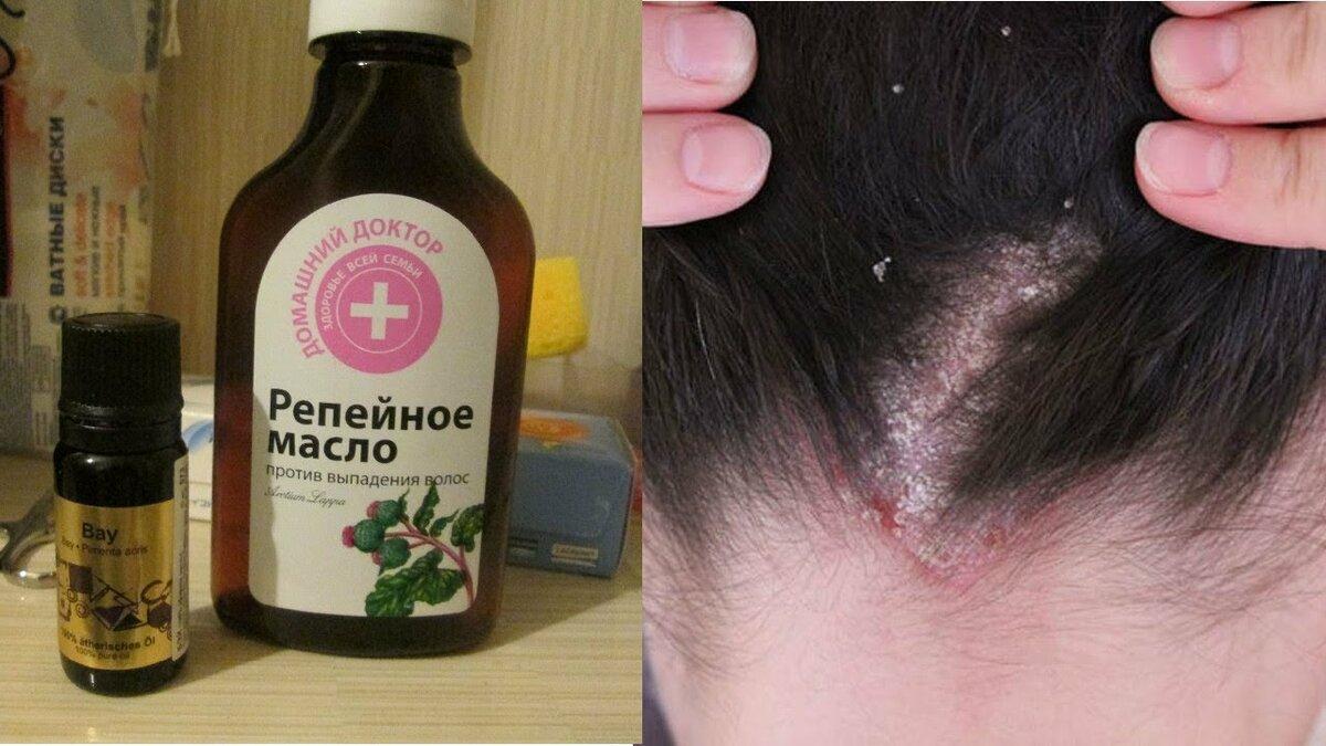 Касторовое масло для волос: полезные свойства и применение