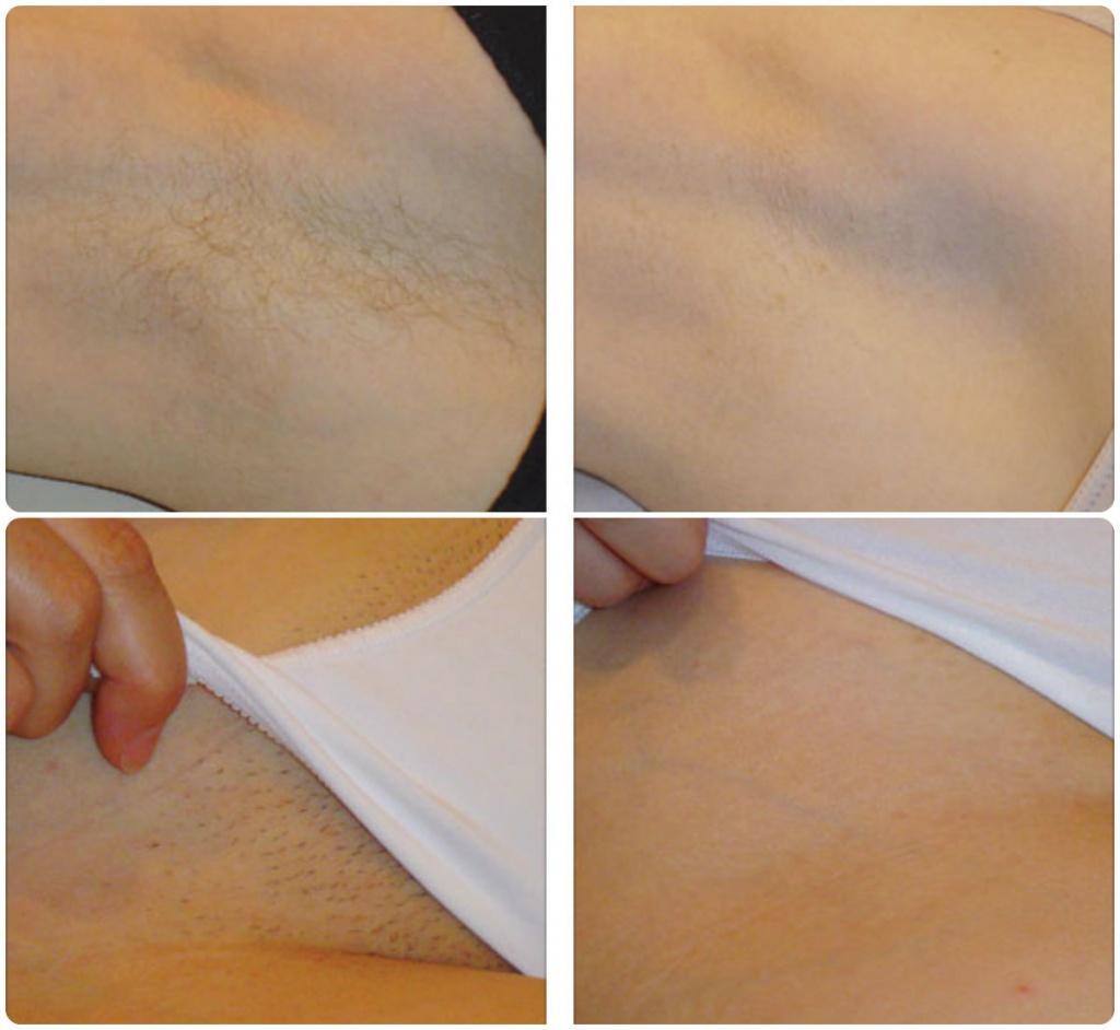Депиляция и эпиляция зоны бикини — удаляем волосы в домашних условиях