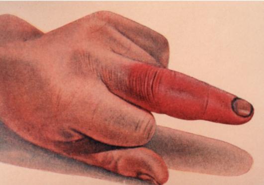 Панариций пальца лечение – как лечить панариций