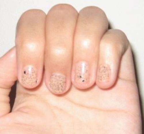 Черная точка под ногтем руки или ноги, а также пятно такого же цвета: что это, почему появляются, может ли быть причиной болезнь или травма, и способы лечения, фото