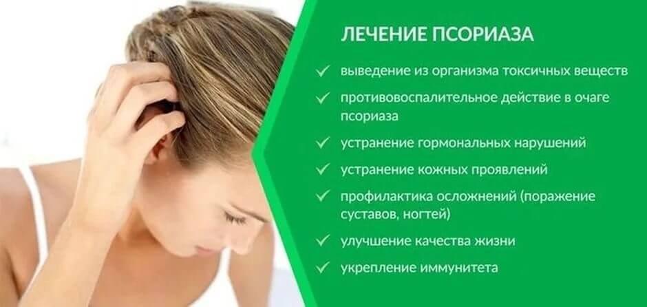 Псориаз на голове: у кого появляется и стратегии лечения