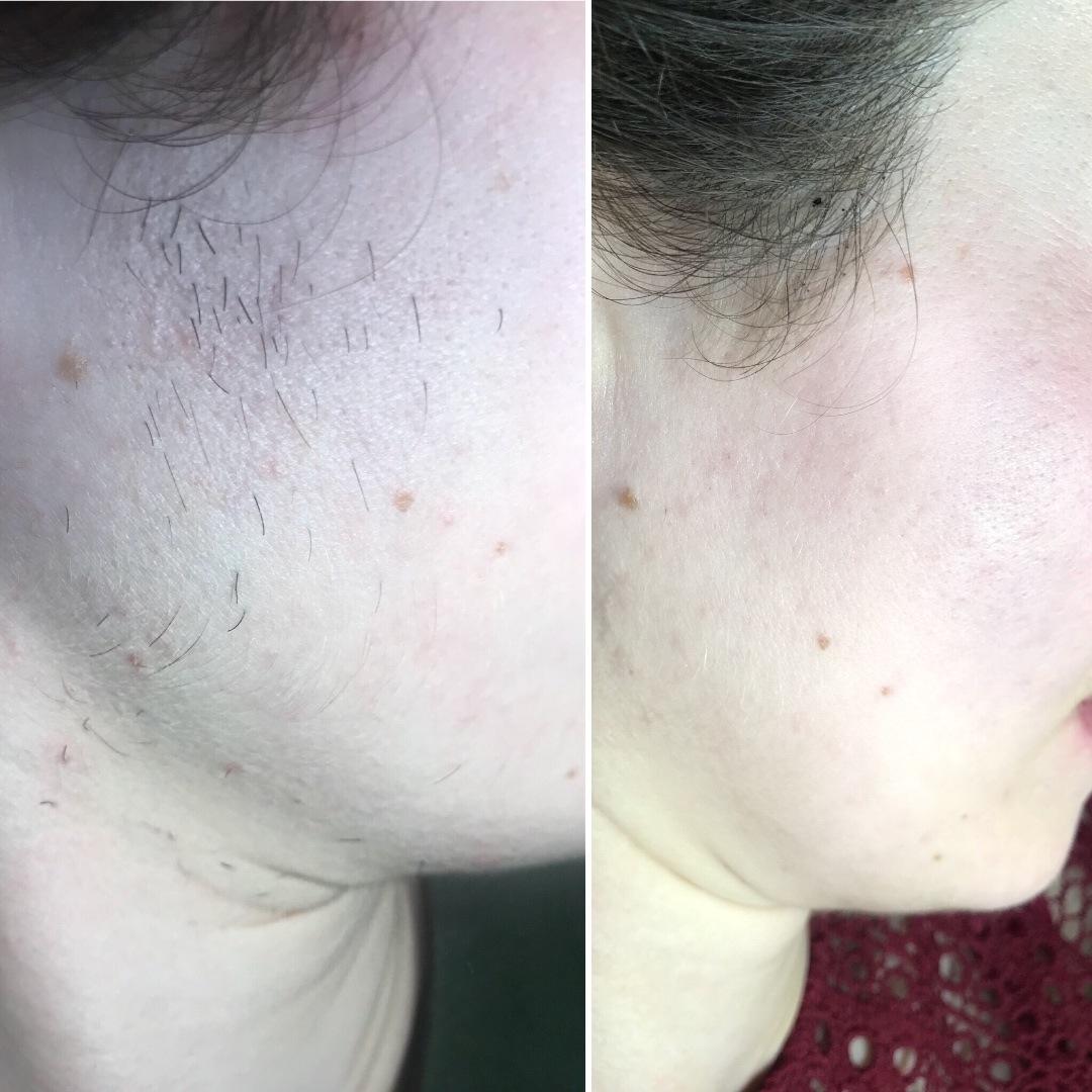 Как избавиться от волос на теле навсегда?