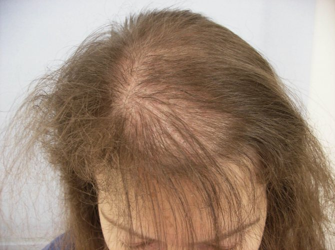 У ребенка выпадают волосы! основные причины!