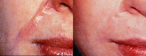 Коллоидные рубцы: причины появления таких образований, фото
