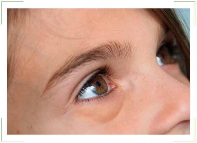 Почему отекает лицо и глаза по утрам: причины