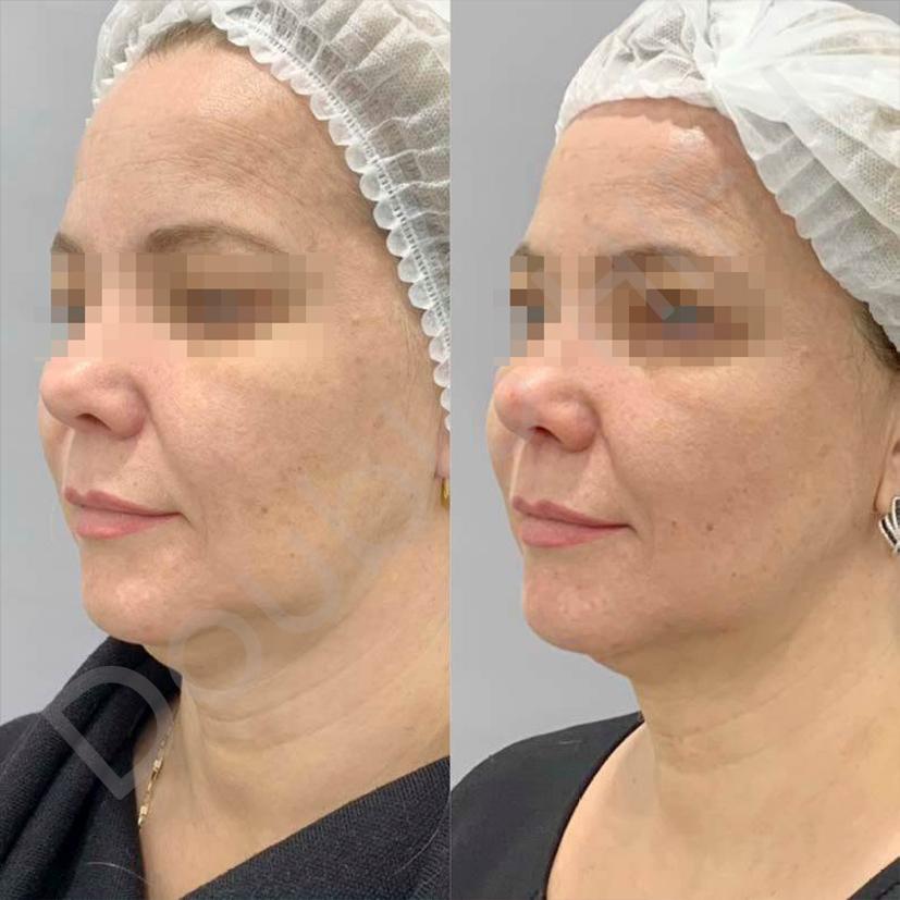Ультразвуковая подтяжка лица: что это такое, подготовка и проведение лифтинга, отзывы