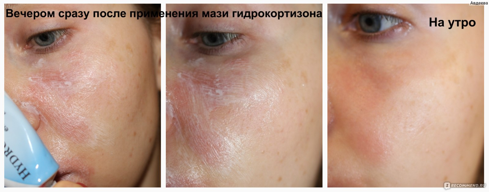 Периоральный (околоротовой) дерматит