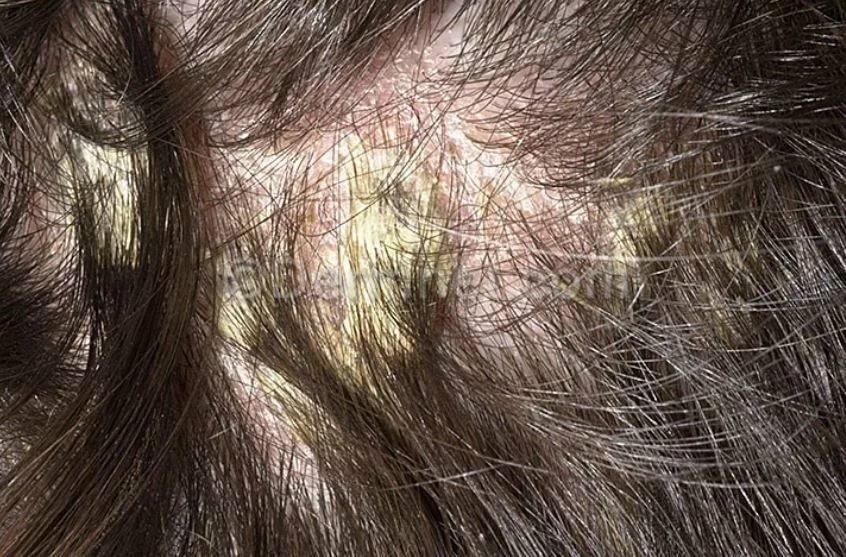 Перхоть. причины, симптомы и лечение патологии :: polismed.com