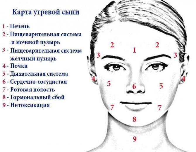 Прыщи на лбу у женщин и мужчин: причины, какой орган страдает?