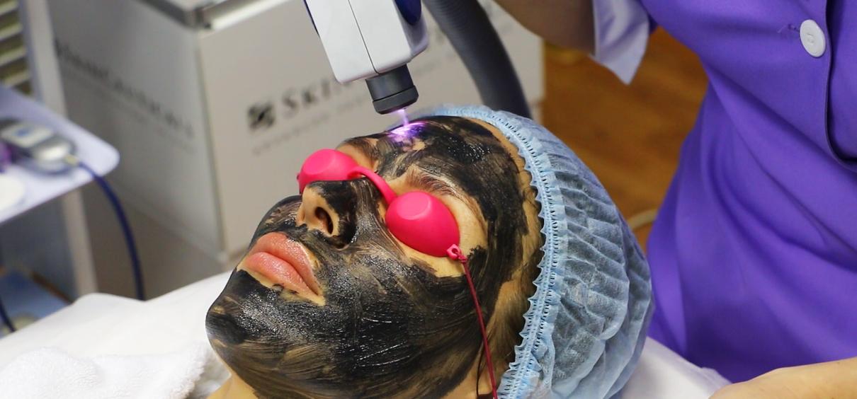 Лазерный карбоновый пилинг лица: что это такое, противопоказания, уход после процедуры