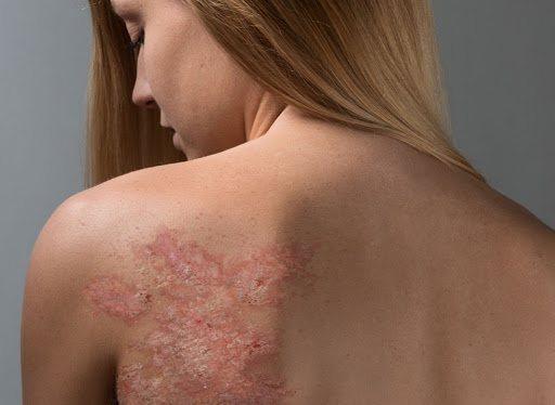 Псориаз: причины, клинические признаки, лечение и профилактика заболевания.