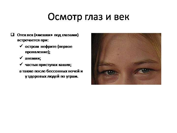 Почему отекает лицо и глаза по утрам?