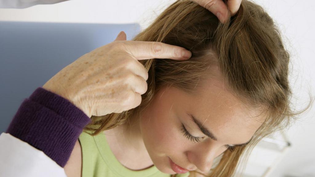 Почему чешется голова и выпадают волосы: причины, лечение у женщин и мужчин
