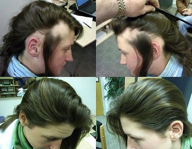 Лечебное воздействие и ошеломляющий эффект процедуры дарсонвализации волос
