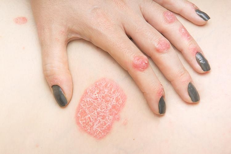 Псориаз: причины и симптомы, лечение и профилактика