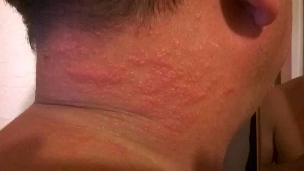 Раздражение кожи на лице