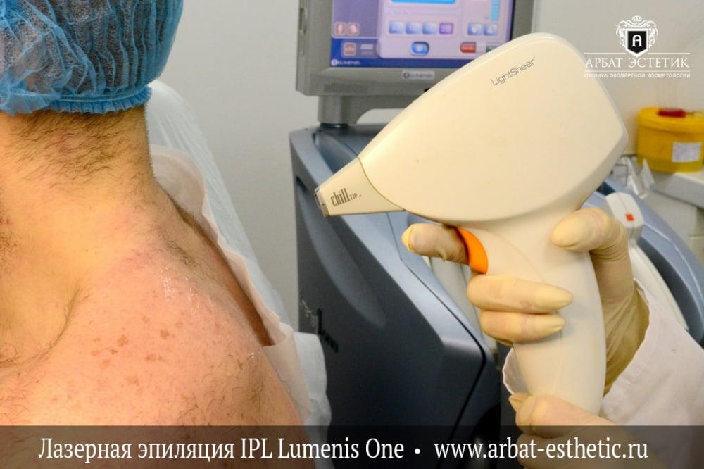 Особенности лазерной эпиляции для светлых волос и основные противопоказания
