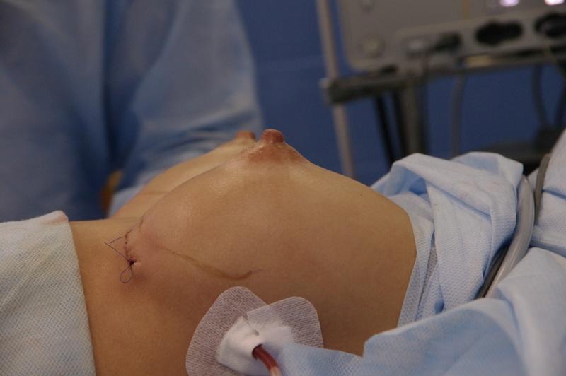Маммопластика (пластика груди) – хирургическая пластическая операция