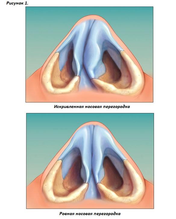 Реабилитация после операции на носовой перегородке