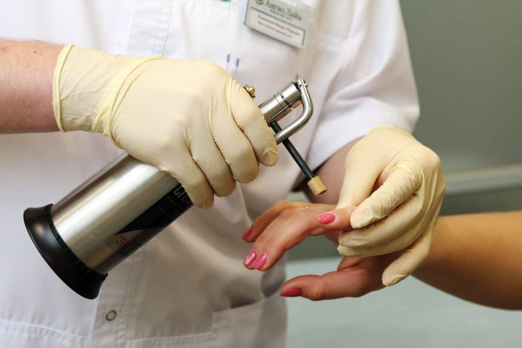 Последствия удаления бородавок жидким азотом