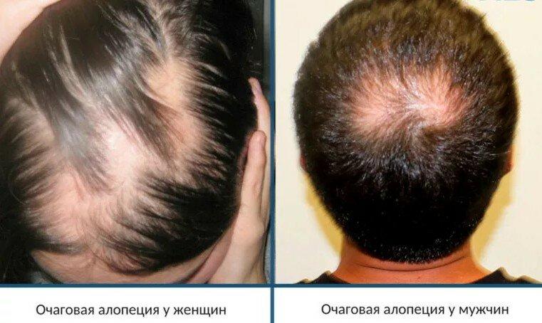 Что делать, если выпадают волосы у ребенка