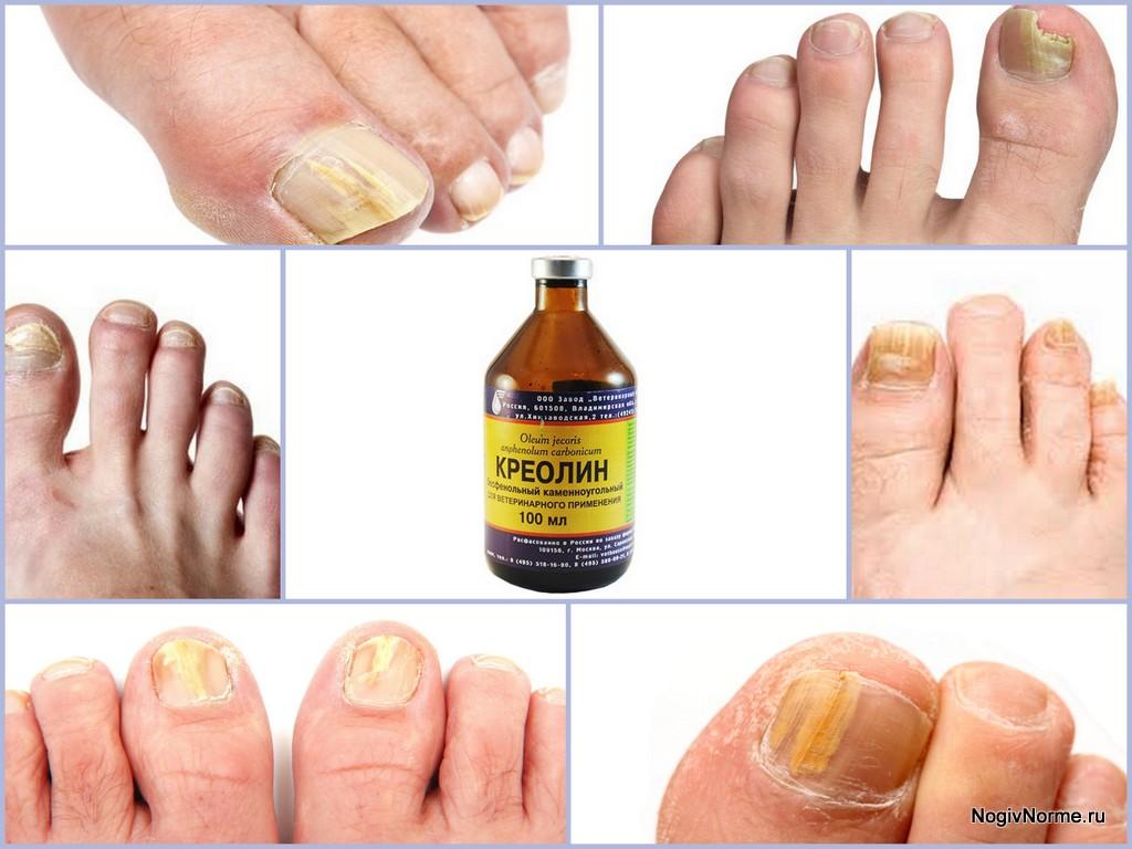 Самый быстрый способ лечения грибка ногтей