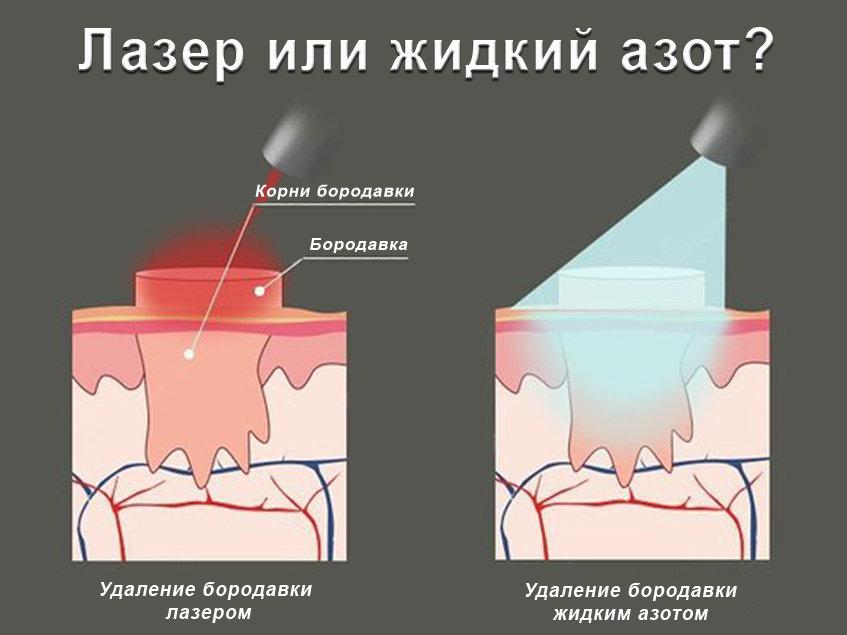 Бородавка после прижигания азотом: уход и последствия