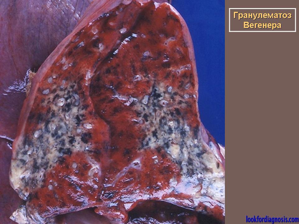 Что за болезнь васкулит, его классификация, причины, признаки, симптомы, лечение и профилактика (фото и видео)