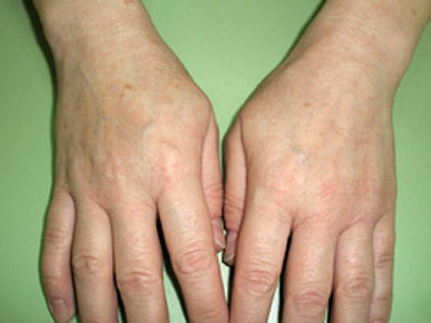 Нейродермит - причины, симптомы, методы лечения