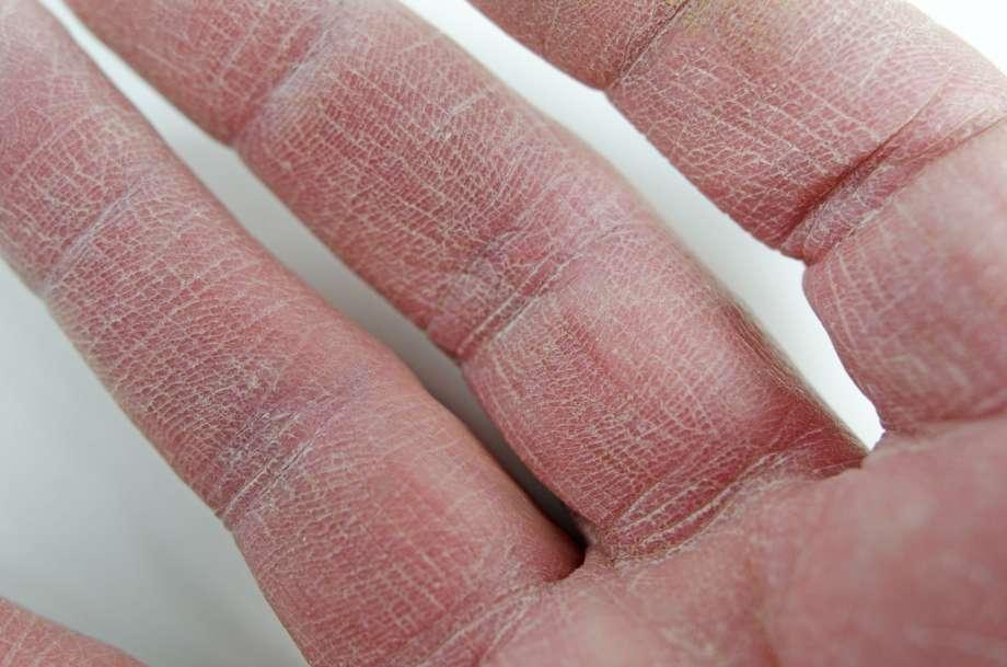 Сухая кожа рук: причины и что делать