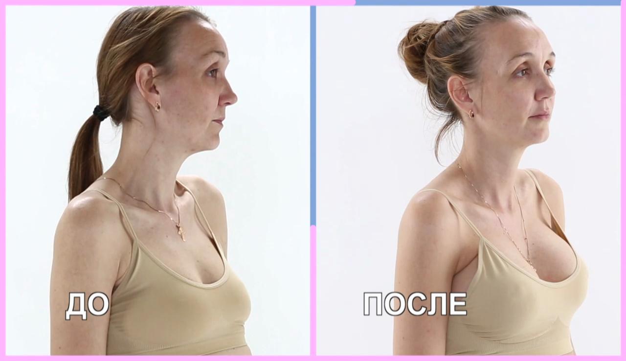 Первый размер груди: плюсы и минусы, способы увеличения