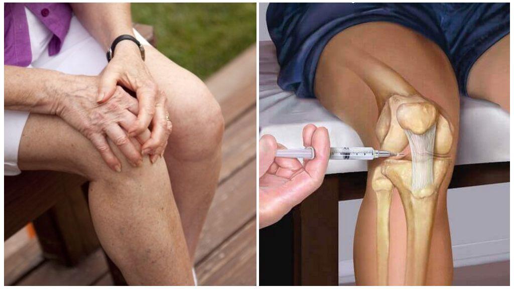 Средства с гиалуроновой кислотой для суставов (мази и кремы, таблетки, инъекции): особенности применения + отзывы