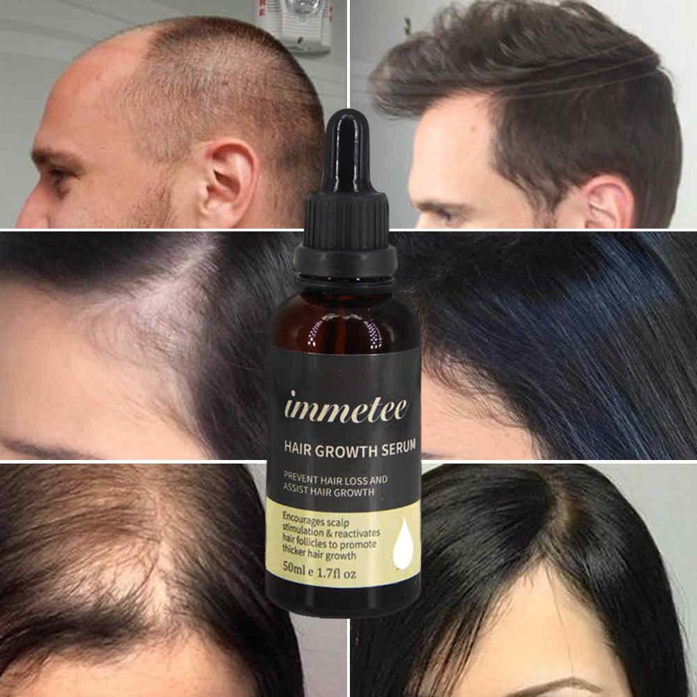 Лучшие аптечные средства для роста волос