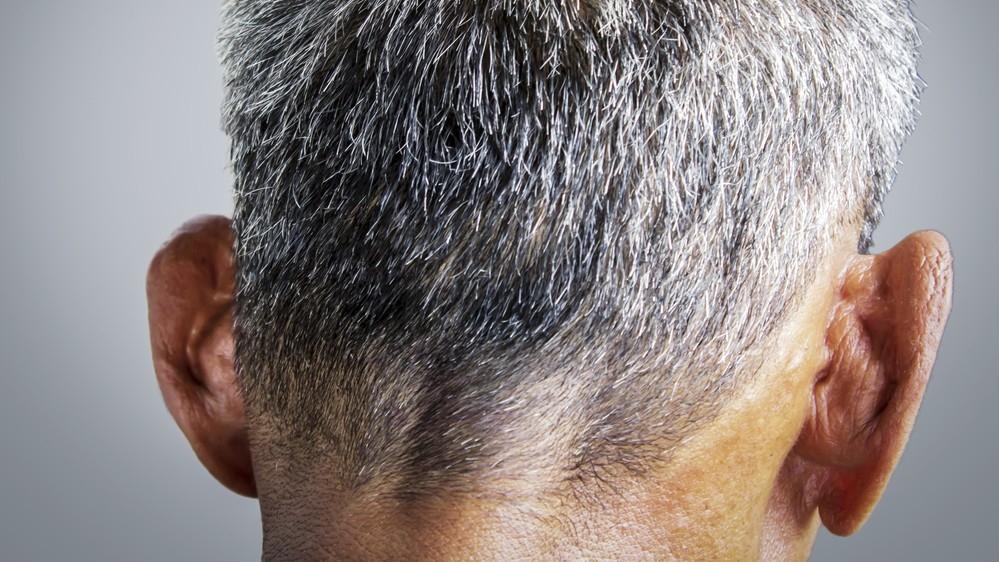 Седина вголову. почему мы седеем итеряем волосы