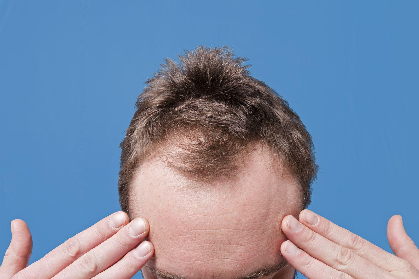 Самые эффективные средства против выпадения волос у женщин