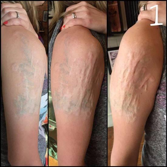 Удаление тату по низким ценам. лазерное удаление татуировки в москве  с фото до и после