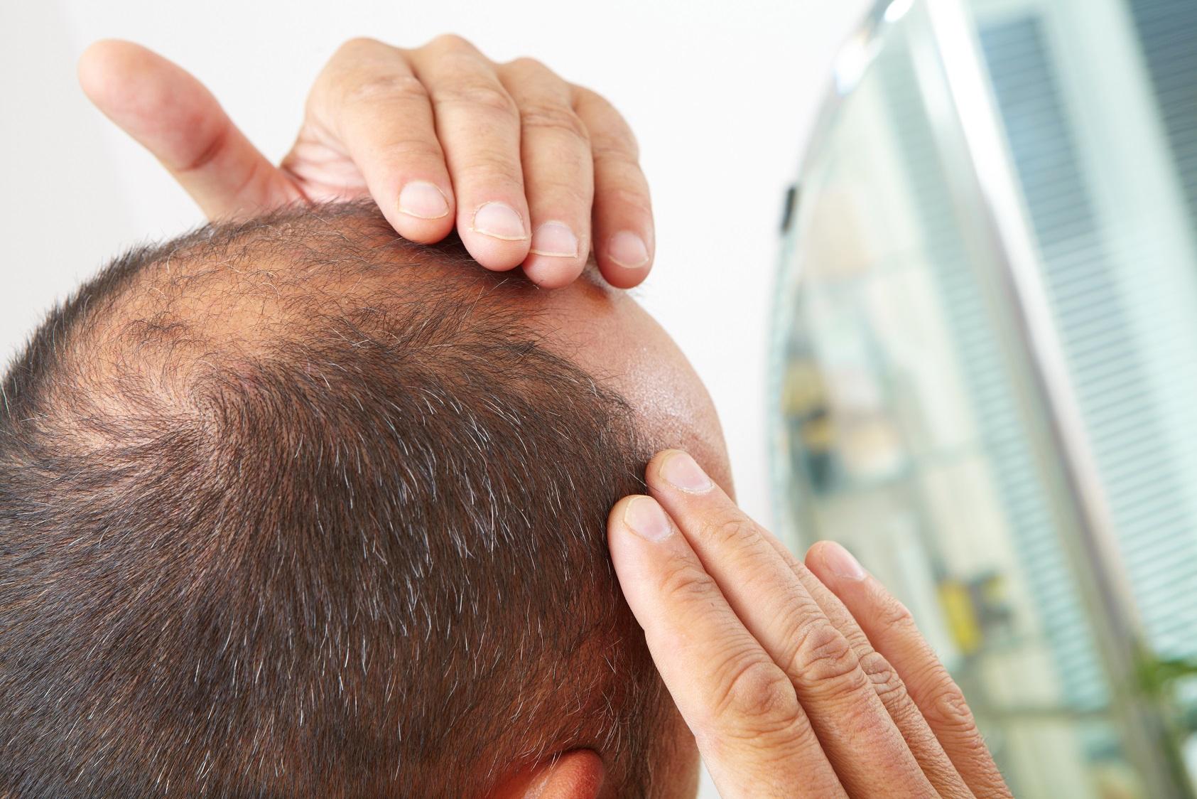 Причины выпадения волос у женщин после 40, 50, 60 лет, лечение заболеваний
