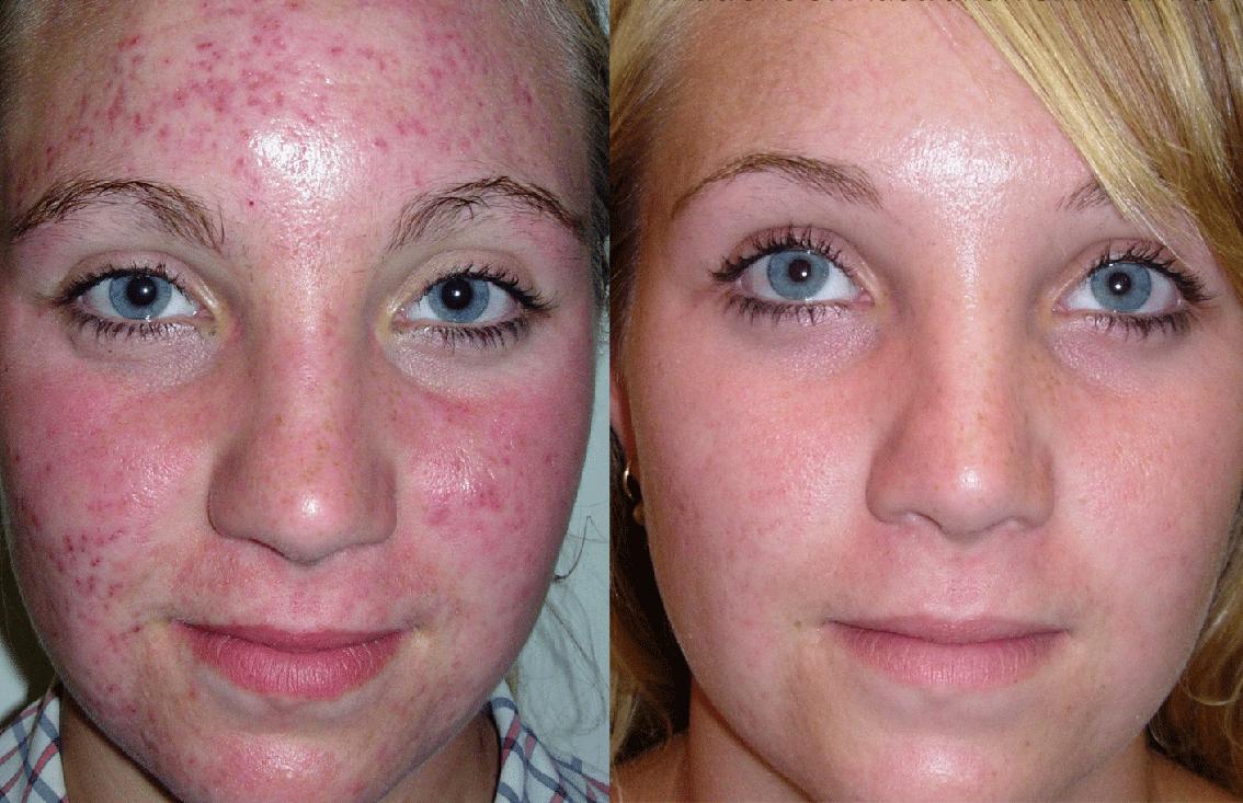 Раздражение кожи на лице, как убрать