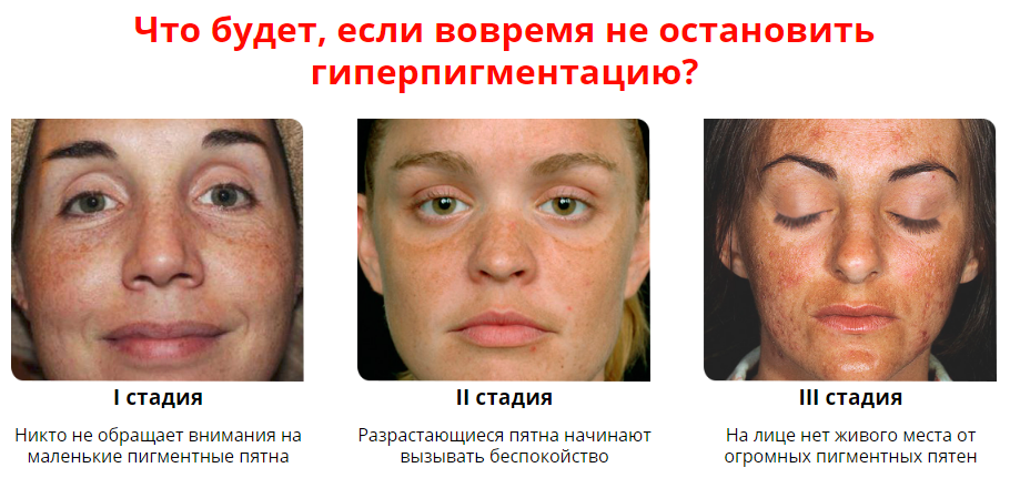 Коричневые пятна на лице: причины появления и методы лечения. пигментные пятна