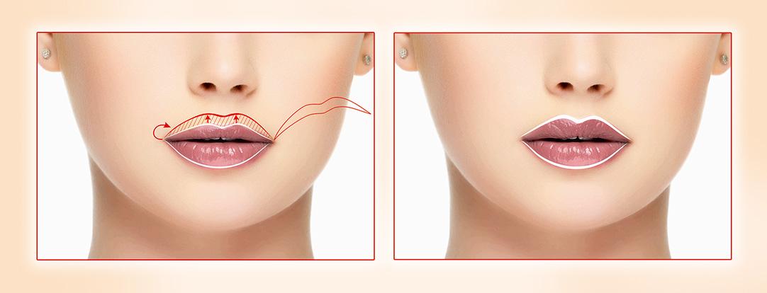 Увеличение губ методами контурной пластики