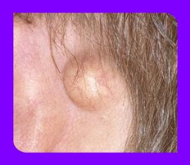 Причины появления, признаки и методы лечения атеромы в мочке уха