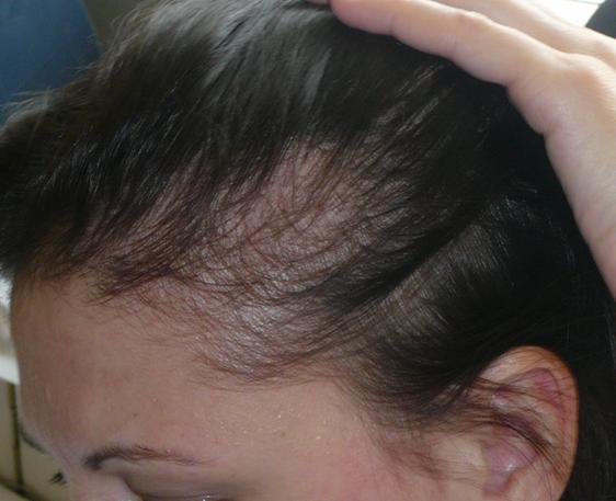 Причины диффузного выпадения волос у женщин, лечение
