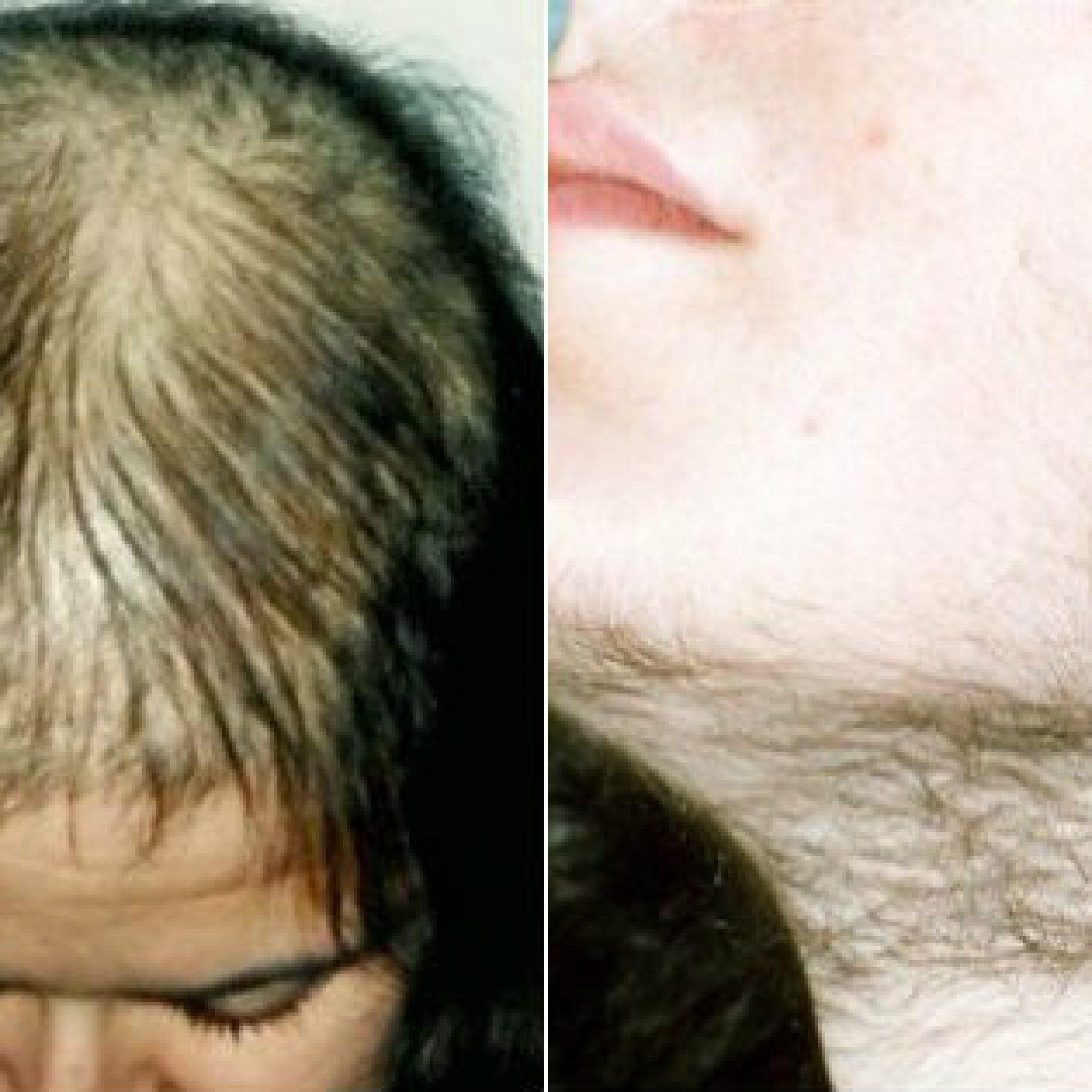 Выпадение волос от стресса - лечение. как остановить стрессовую алопецию