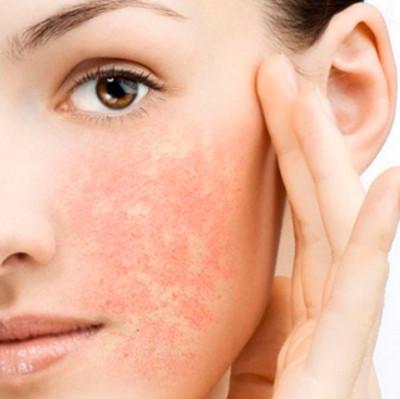 Зуд на лице с покраснением: неприятное явление можно устранить