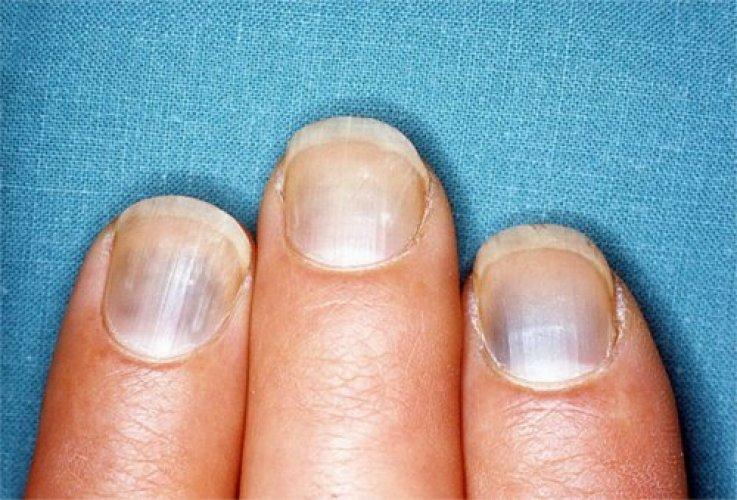 Как убрать темные красно - коричневые пятна или точки с ногтей