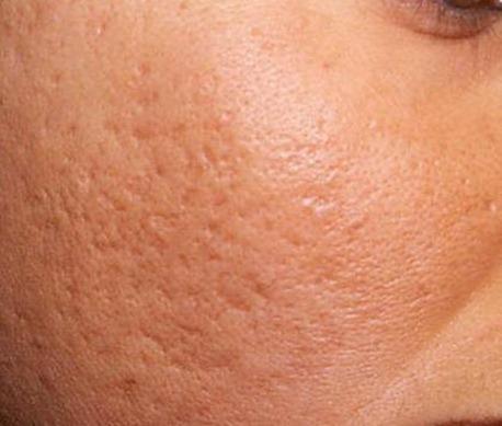 Шрамы и рубцы на лице: как избавиться в домашних условиях?