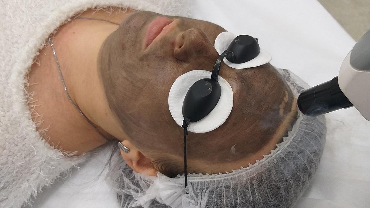 Карбоновый пилинг лица: что это за процедура, польза и вред, противопоказания