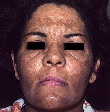 Мелазма: причины возникновения хлоазмы (+ как избавиться от «маски от беременности») | drderamus.com