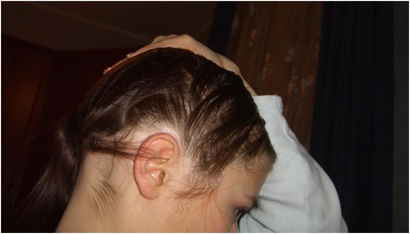 Сколько у человека выпадает в день волос