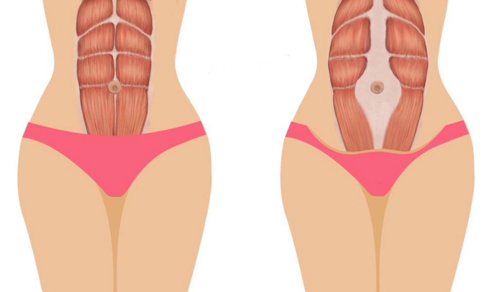 Прощай диастаз. эффективные упражнения после родов